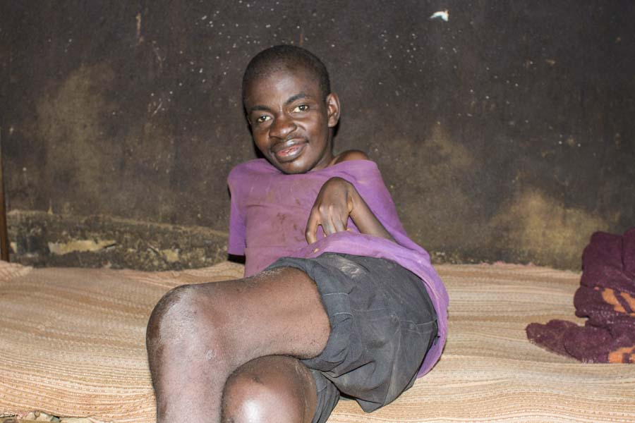 This 28 year old man lives with his sister and stays in his room on his bed all day long.  He has never attended school.  He suffers from seizures on regular basis and in fact, he had an episode while I was there.  According to his sister, he has epilepsy, intellectual disability and mobility disability.  He doesn't speak.  His seizures were first identified when he was 8 months-old.  He was once able to walk but stopped being able to walk when he was 3 years-old.  His sister believes that his seizures made him become more disabled over the years   When I asked his sister why he doesn't have any devices to allow him to move, she said that she would love to get him a wheelchair but does not know where to find one.